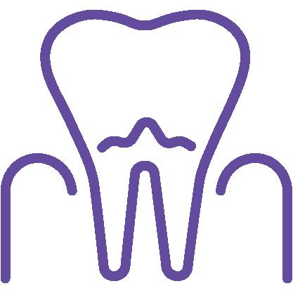Dantų kanalų gydymas (endodontija)
